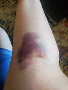 Arm with huge bruise near elbow bend due to failed plasma blood donation